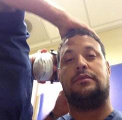 Daniel Negreanu Hair Transplant