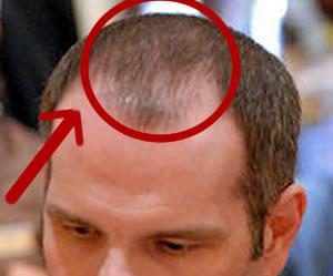 Lederer balding